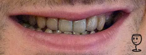P1140076 modré zuby TB